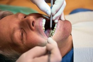 Dental Bridge Complications