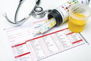 Orange Urine & Pain With a Urinary Tract Infection