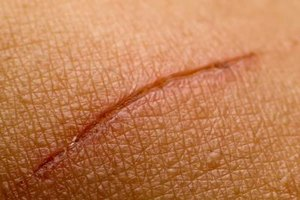 How To Prevent Scar Tissue Formation