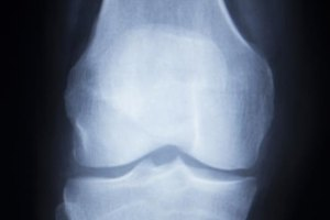 Rehabilitation From Tibial Plateau Knee Surgery