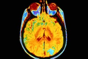What Is Stage 4 Brain Cancer?