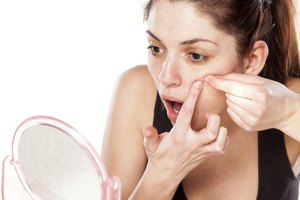 Acne and Dermatitis