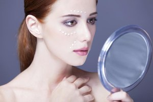 Alternatives to Benzoyl Peroxide