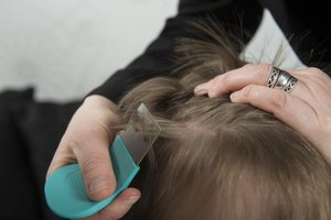 Baby Oil for Head Lice