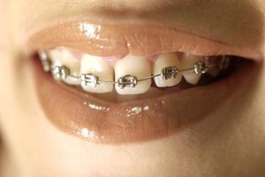 Bad Effects of Braces
