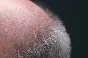 Red Blotches on the Scalp