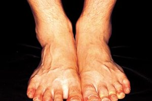 Does Sodium and Potassium Imbalance Lead to Swollen Ank…