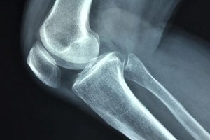 Knee Replacement Infection Symptoms