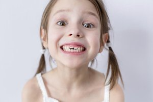 Does a Baby Tooth Need to Be Extracted When It Is Loose…