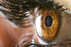 High Cholesterol Effects on Eyes