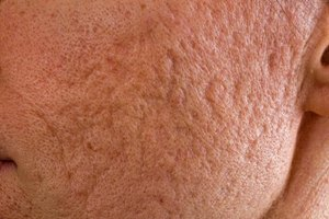 Glycolic Acid Treatments for Acne Scars