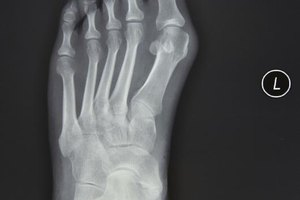 Home Remedies for Fractured Foot Bones