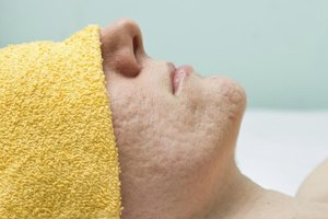 How to Get Rid of Cystic Acne Scars