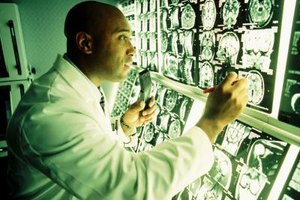 What Brain Disorders Does an MRI Detect?