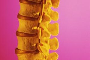 Can You Reverse Scoliosis with Exercise?