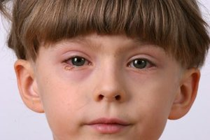 Bloodshot Eyes in Children