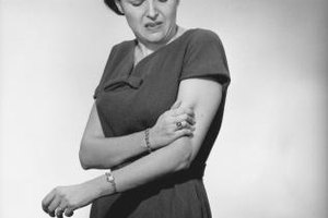 Causes of Sharp Left Arm Pain