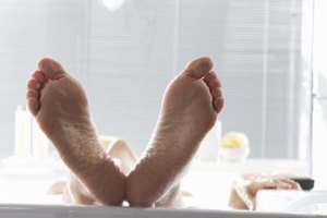 Reasons for Severely Cracked Heels