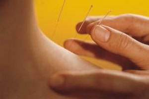 Can Acupuncture Damage Nerves?