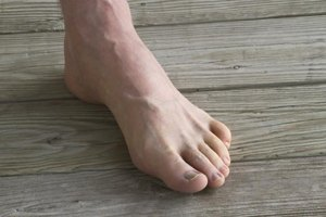 How to Prevent Losing Toenails From Exercising