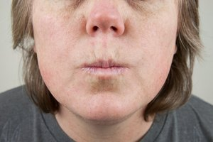 Home Remedy for Upper Lip Lines
