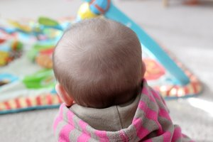 How to Prevent a Bald Spot from Developing on the Back …