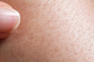 Natural Remedies for Extremely Dry Skin