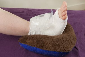 How Do I Wrap a Sprained Ankle?