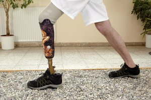 How to Learn to Walk on a Prosthetic Leg