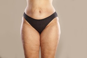 How to Reduce Exercise-Induced Stretch Marks