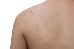 Causes of Acne on the Arms & Back
