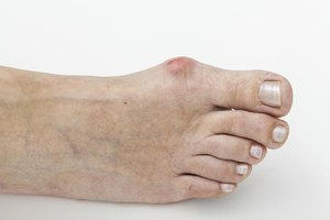 Problems From Flat Feet