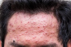 Common Skin Rashes on the Face