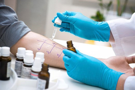 4. Allergy Tests Are Not Foolproof