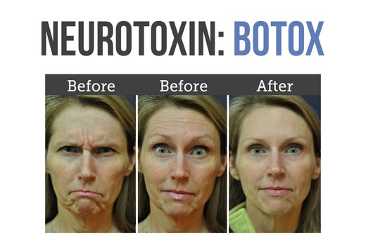 2. Neurotoxins (Botox, Dysport and Xeomin)