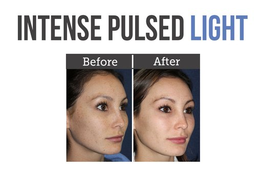 9. IPL (Intense Pulsed Light)
