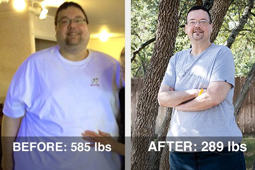 How Jim F. Lost 300 Pounds