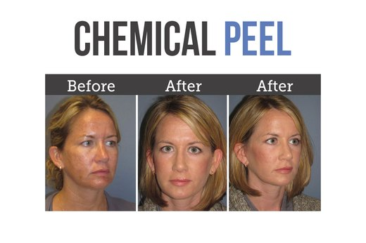 7. Chemical Peel