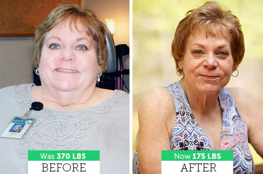 How Dianna J. Lost Almost 200 Pounds!