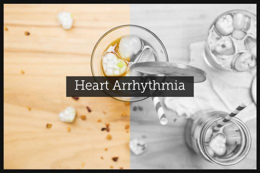 1. Heart Arrhythmia