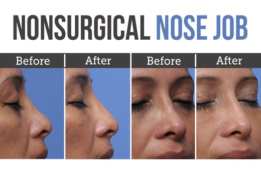 5. Nonsurgical Nose Job