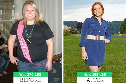 Kate R. Lost 115 Pounds!
