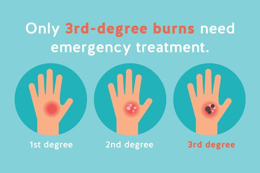 7. Treat Burns According to Severity
