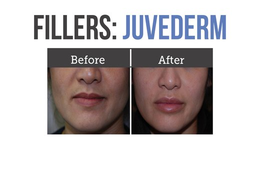 4. Hyaluronic Acid Fillers (Restylane or Juvederm)