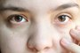 How to Reduce Eye Redness