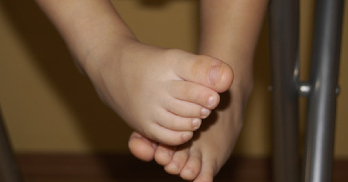 Toddler Foot Problems | LIVESTRONG.COM