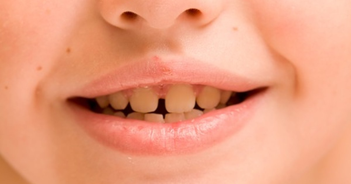 What Are the Causes of Yellow Teeth in Children ...