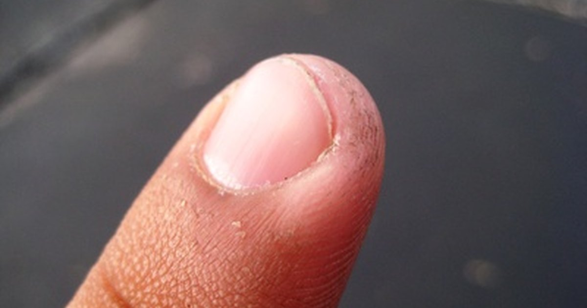 How to Treat an Ingrown Fingernail | LIVESTRONG.COM