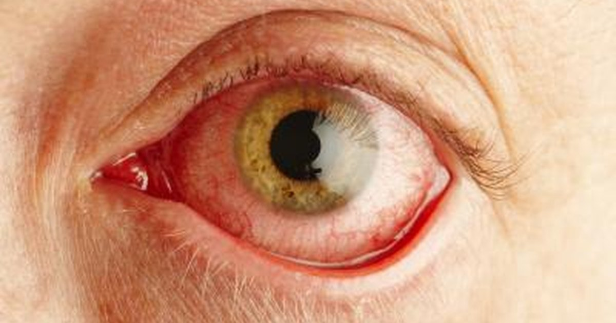 Causes Of Eye Discoloring Livestrong Com