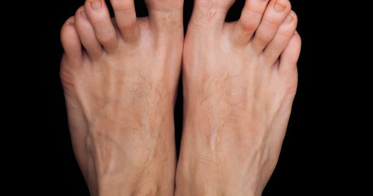 How To Get Rid Of Thick Toe Nails Livestrong Com